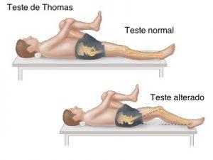 teste de encurtamento muscular