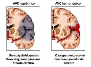 Tipos de AVC: Isquêmico e Hemorrágico